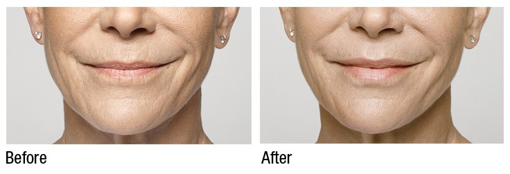 Restylane pittsburgh -before and after