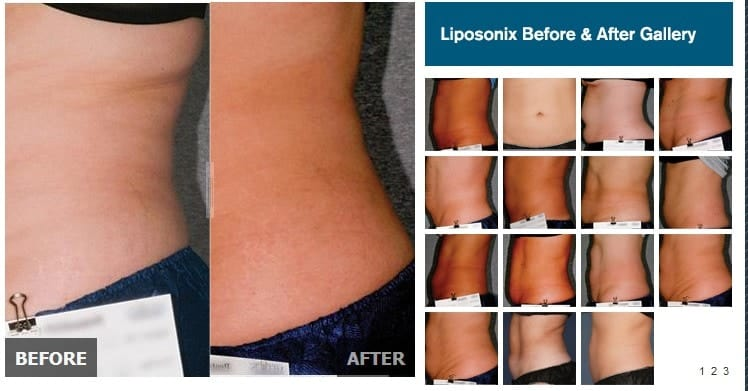 Liposonix Fat Reduction Before And After Pictures