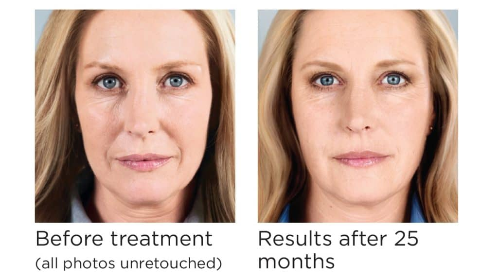 Nose wrinkles nasolabial injections Pittsburgh