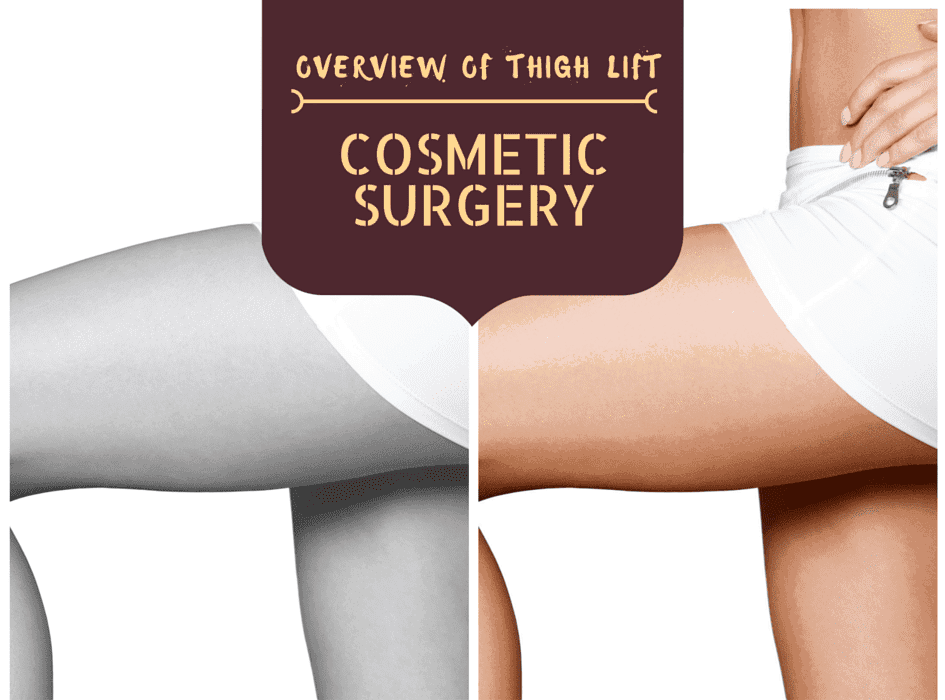 Overview Of Thigh Lift Cosmetic Surgery
