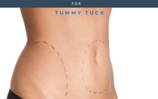 Good Candidate For Tummy Tuck