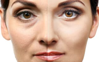 Browlifts and Eyelid Surgeries