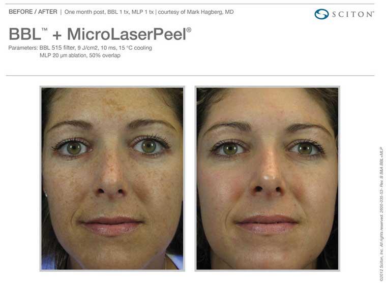 BBL Micro Laser Peel