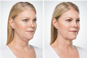 Kybella Before + After Images